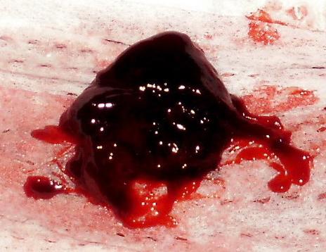 obat-gumpalan-darah-di-otak